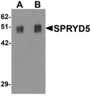 NBP1-77087 - TRIM51 / SPRYD5