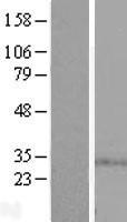 NBL1-16438 - SPSB1 Lysate