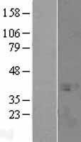 NBL1-16616 - SPT3 Lysate