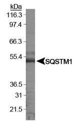 NBP1-42822 - SQSTM1