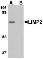 NBP1-77326 - SCARB2