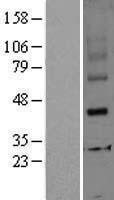 NBL1-16447 - SRD5A2 Lysate
