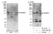 NBP1-71880 - SREBF2 / SREBP2