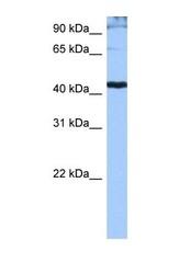 NBP1-57112 - SFRS6