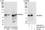 NBP1-30108 - SRPK1