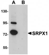 NBP1-77086 - SRPX / ETX1