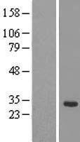 NBL1-16461 - SRrp35 Lysate