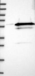 NBP1-87122 - SS-A / Ro52 / TRIM21