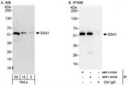 NBP1-40338 - SS-A / Ro52 / TRIM21