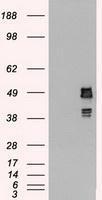 NBP1-48002 - SS-B / La