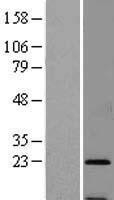 NBL1-16474 - SSR3 Lysate
