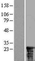 NBL1-16476 - SSSCA1 Lysate