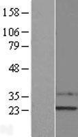 NBL1-16483 - SSX1 Lysate