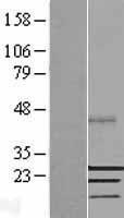 NBL1-16484 - SSX2 Lysate