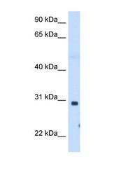 NBP1-60067 - ST3GAL3