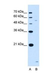 NBP1-62444 - ST3GAL5