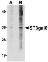 NBP1-77353 - ST3GAL6