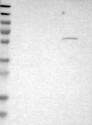 NBP1-81364 - ST6GAL2