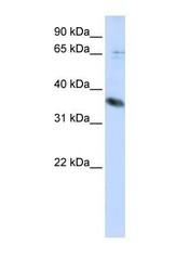 NBP1-62649 - ST6GALNAC1