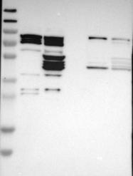 NBP1-87043 - ST6GALNAC1