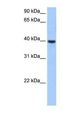 NBP1-62417 - ST6GALNAC4