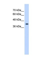 NBP1-69618 - ST6GALNAC5