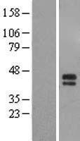 NBL1-16502 - ST6GALNAC5 Lysate