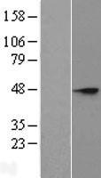 NBL1-16506 - ST8SIA3 Lysate