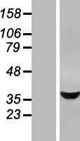 NBL1-16517 - STARD10 Lysate