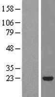 NBL1-16520 - STARD5 Lysate