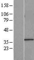 NBL1-16521 - START domain containing 7 Lysate