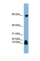 NBP1-58020 - Statherin / STATH
