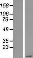 NBL1-16530 - STATH Lysate