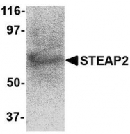 NBP1-76823 - STEAP2 / STAMP1