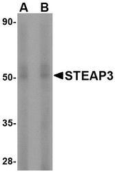 NBP1-76824 - STEAP3 / TSAP6