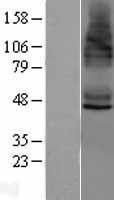 NBL1-16537 - STEAP4 Lysate