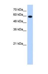 NBP1-57837 - STIP1