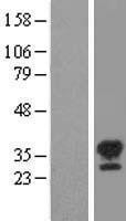 NBL1-16543 - STK16 Lysate