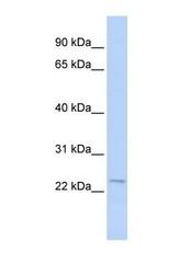 NBP1-56644 - STK32A