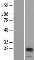 NBL1-16549 - STK32A Lysate