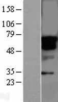 NBL1-16551 - STK33 Lysate
