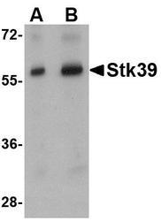 NBP1-76957 - STK39 / SPAK