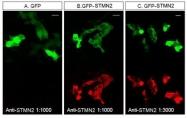 NBP1-49461 - Stathmin-2 / STMN2