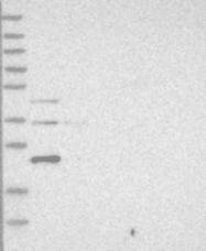 NBP1-87077 - Stathmin-2 / STMN2