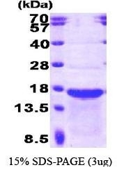 NBP1-30285 - Stathmin-2 / STMN2