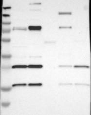 NBP1-80779 - Stathmin-3 / STMN3