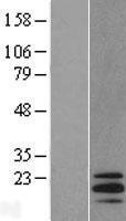 NBL1-16559 - STMN3 Lysate