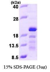 NBP1-44469 - Stathmin-3 / STMN3