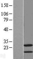 NBL1-16560 - STMN4 Lysate