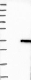 NBP1-88561 - Stomatin / STOM
